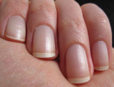 Wie plesnewyj gribok der Nägel zu behandeln
