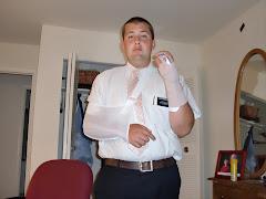 broken wrist!