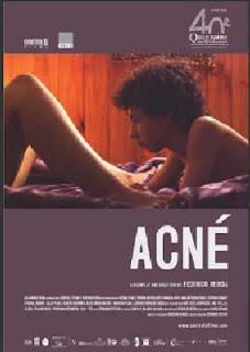Acné (2007).Acné (2007).Acné (2007).Acné (2007).Acné (2007).