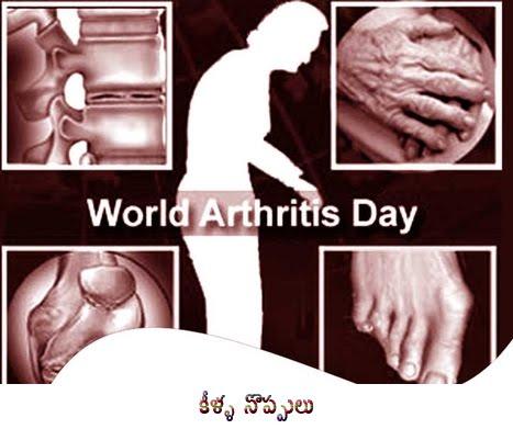 http://2.bp.blogspot.com/_DP4mgmsZ7NQ/TLuRjVizpCI/AAAAAAAABC4/D3-wnlsW3es/s1600/Arthritis.jpg