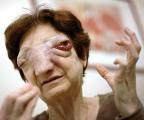 Chantal Sébire med den ødelæggende kræftsvulst