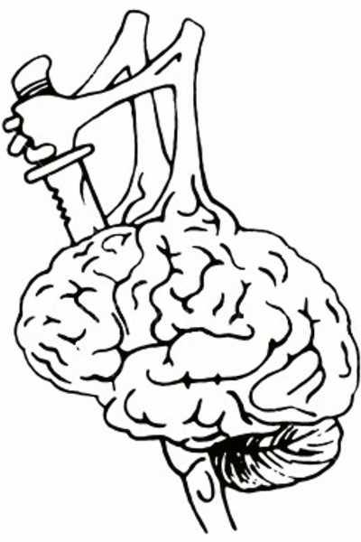 Suicide brain