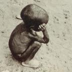 Ulands barn nær døden af sult og tørst