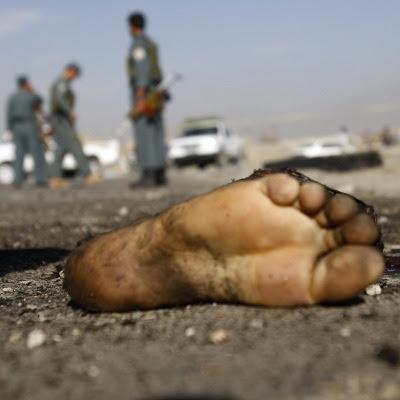 Afsprængt fod fra en selvmordsbomber i Afghanistan