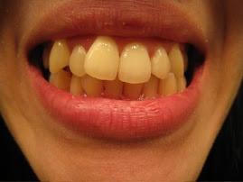 My teeth (2 weeks) -2008