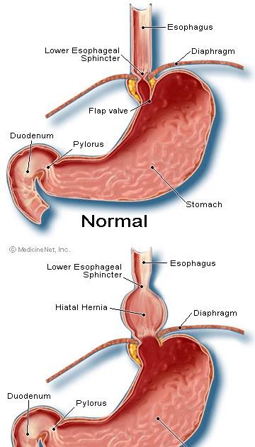 Acid Reflux  Hiatal Hernia
