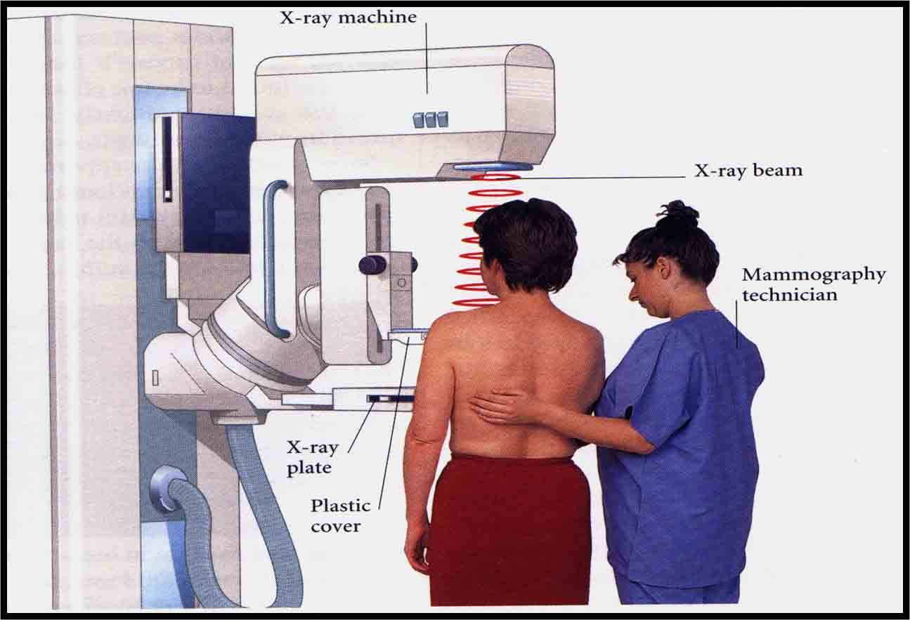 annual mammography after remains important women