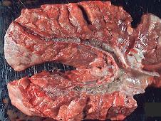 Bronquitis verminosa