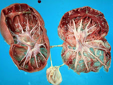 Hidronefrosis bilateral (zorro)
