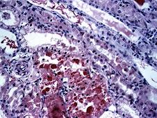 Hemoglobinuria (oveja)