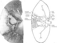 Infarto renal (circulación simple y terminal)