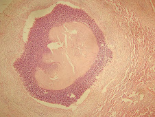Necrosis licuefactiva (absceso pulmonar)