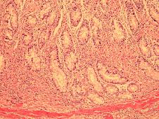 Inflamación granulomatosa difusa (PTBC)