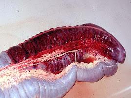 Infarto en colon (equino)