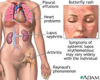 acute gout steroids