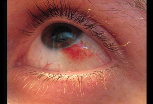 Red eye infection toddler