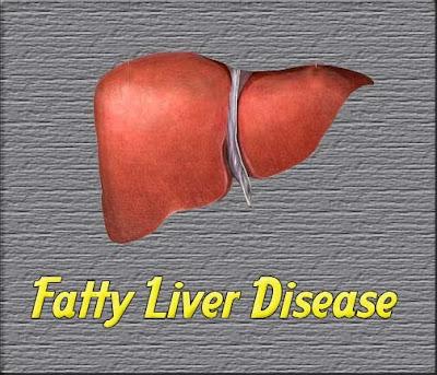 treatment for gallbladder stones genetic