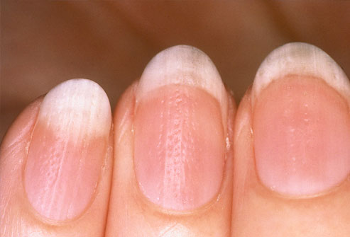 nagels met ribbels