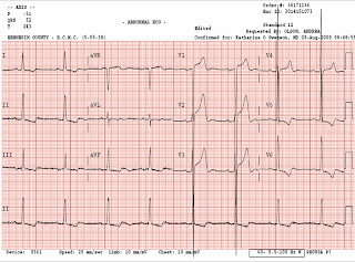 Dr. Smith's ECG Blog: Left Ventricular Hypertrophy May Result in ...
