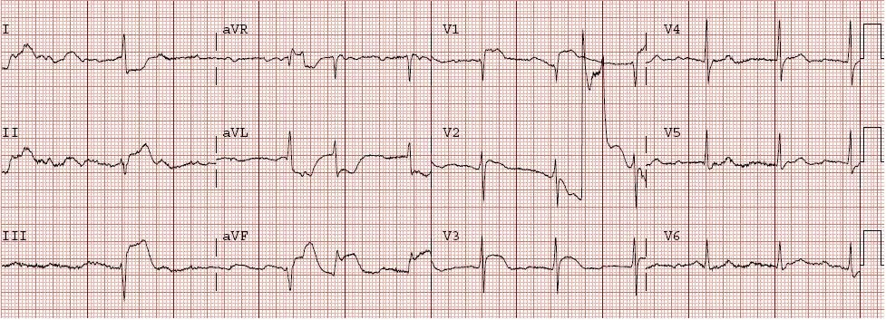 tombstones on ekg. have something V+fib+ekg