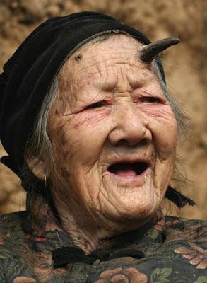 anciana-crecer-cuernos-negros-zhang-ruifang-china.jpg