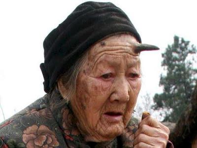 anciana-china-101-anos-crece-cuerno-negro-seis-centimetros