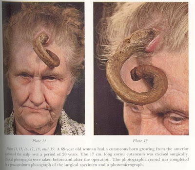 Cutaneous Horn or Cornu Cutaneum are skin tumors with the appearance of animal horns