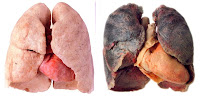 Healthy Lungs vs Smokers Lungs Photos | Quitting smoking tips