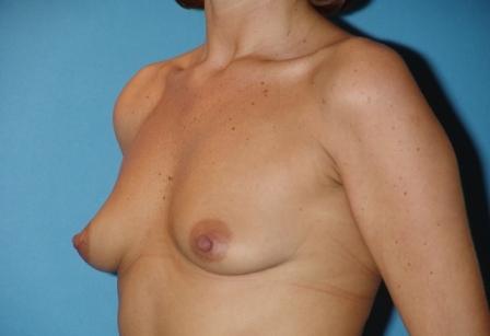 Progesteron la crema para el pecho