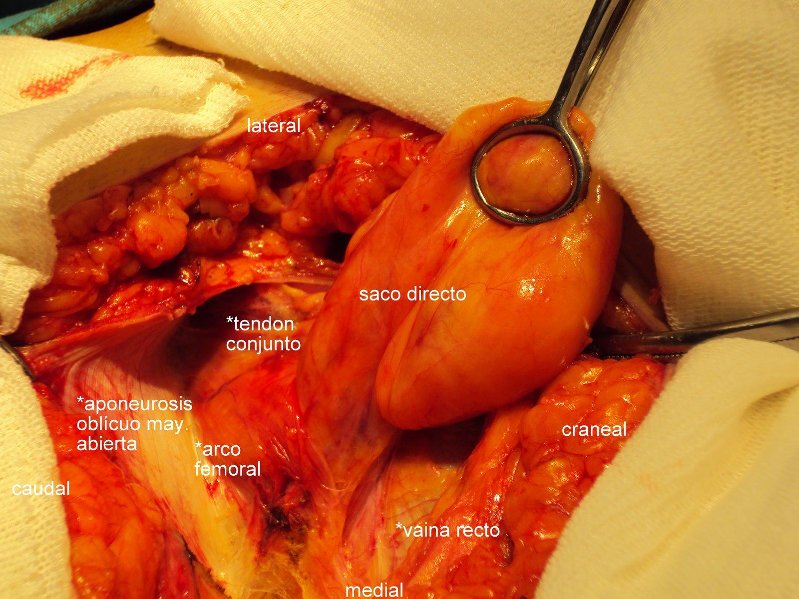 Que vi hoy: Anatomía inguinal