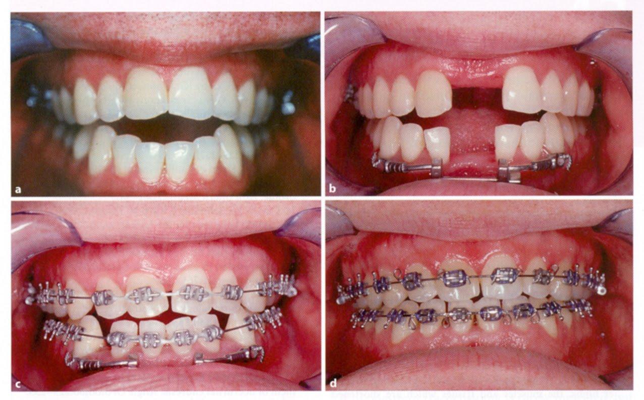 Dilin ucu acıyor. Patolojinin nedenleri