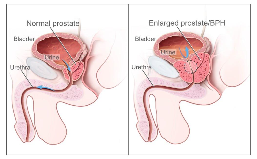 Masturbation for inflamed prostate