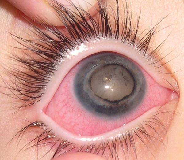 Edema corneal todo sobre salud y enfermedades todo sobre salud y