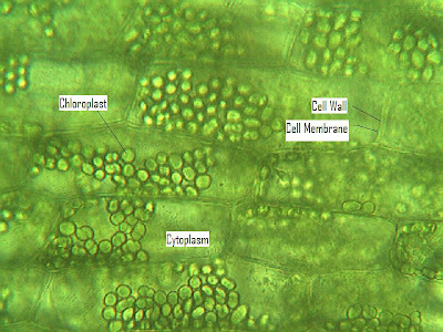 Elodea Cell In Saltwater Labeled