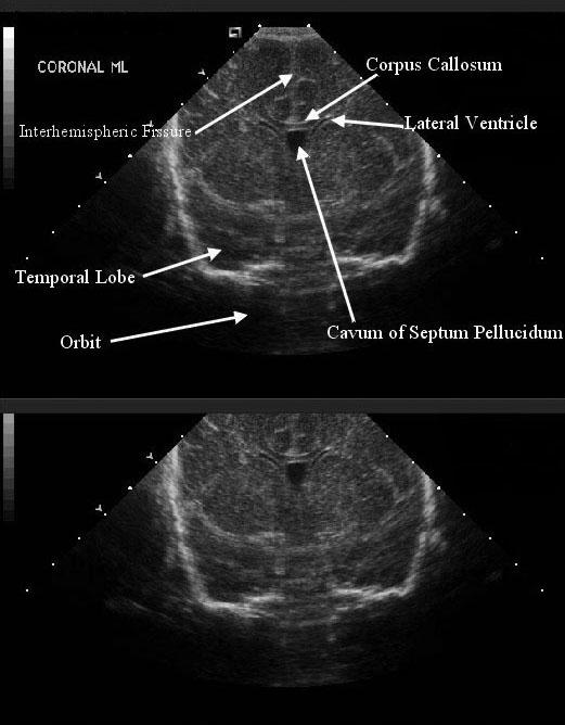Neonatal head anatomy