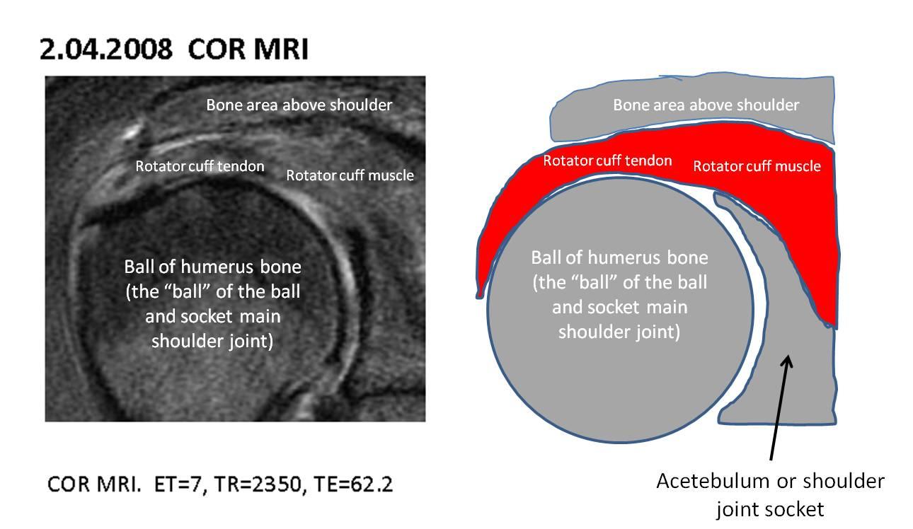 RadiologySpirit: supra-spinatous tendon(anatomy)