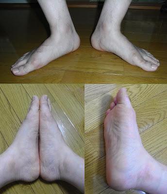 flat feet knee pain