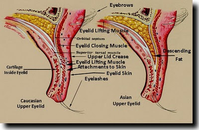 comparison of asian and caucasian upper eyelids