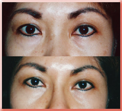 asian upper eyelid
