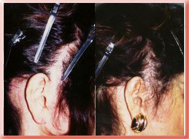 hairgraft scar