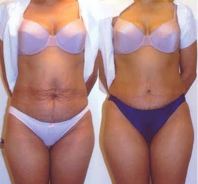 abdominoplasty for stretchmarks