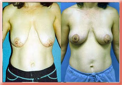 breast lift mastopexy Los Angeles