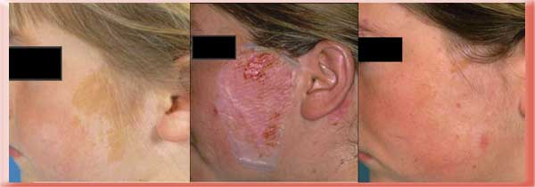 Interracial skin grafting after burn