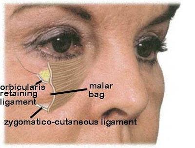 malar retaining ligaments