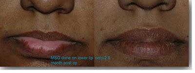 vitiligo lip