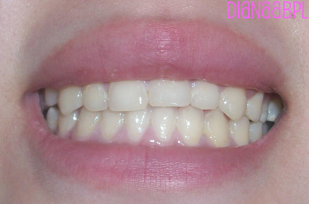 bakpoeder witte tanden