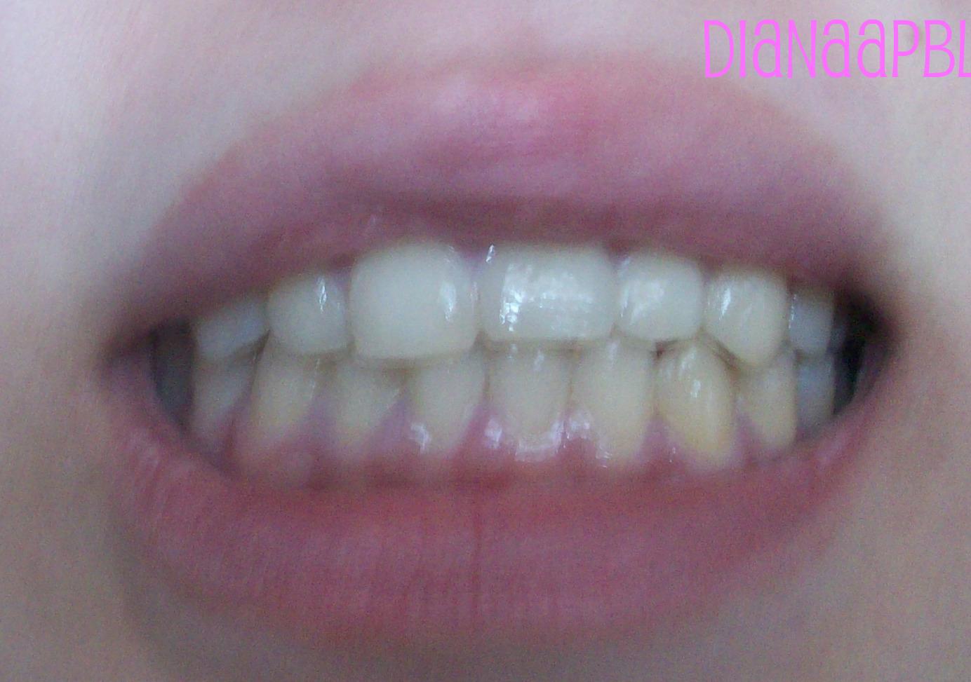 tanden bleken met bicarbonaat
