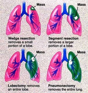 ... - Pneumothorax Collapsed Lung Definition Symptoms Causes Treatments