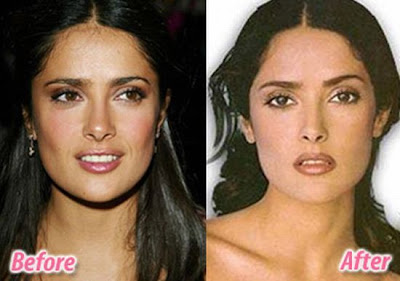 Hollywood Celebrities Before and After Plastic Sur