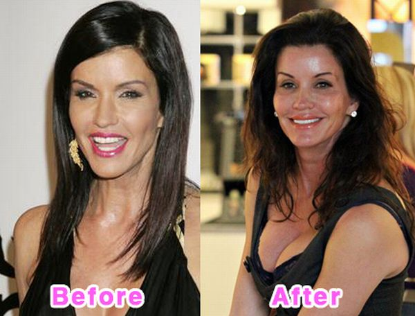 Cause and Effects of Plastic Surgery?
